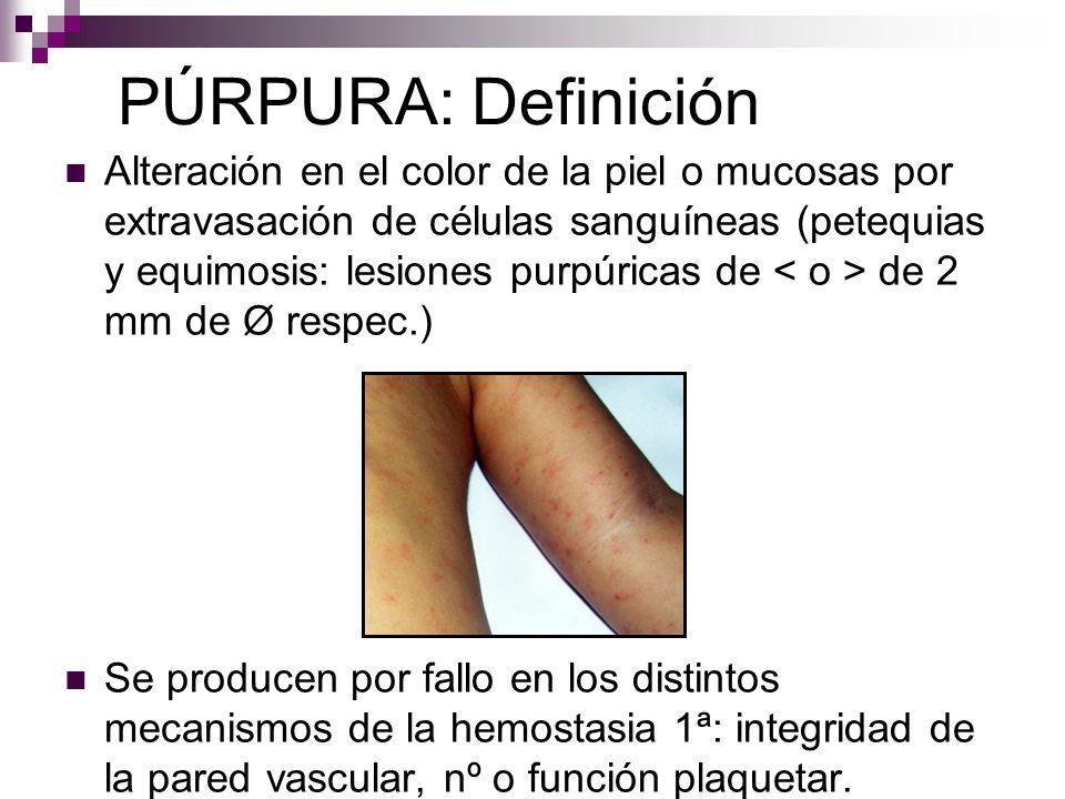 PÚRPURA: Definición Alteración en el color de la piel o mucosas por extravasación de células sanguíneas (petequias y equimosis: lesiones purpúricas de