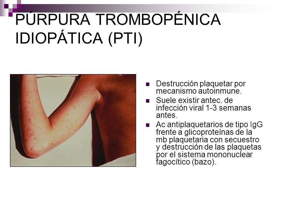 PÚRPURA TROMBOPÉNICA IDIOPÁTICA (PTI) Destrucción plaquetar por mecanismo autoinmune. Suele existir antec. de infección viral 1-3 semanas antes. Ac an