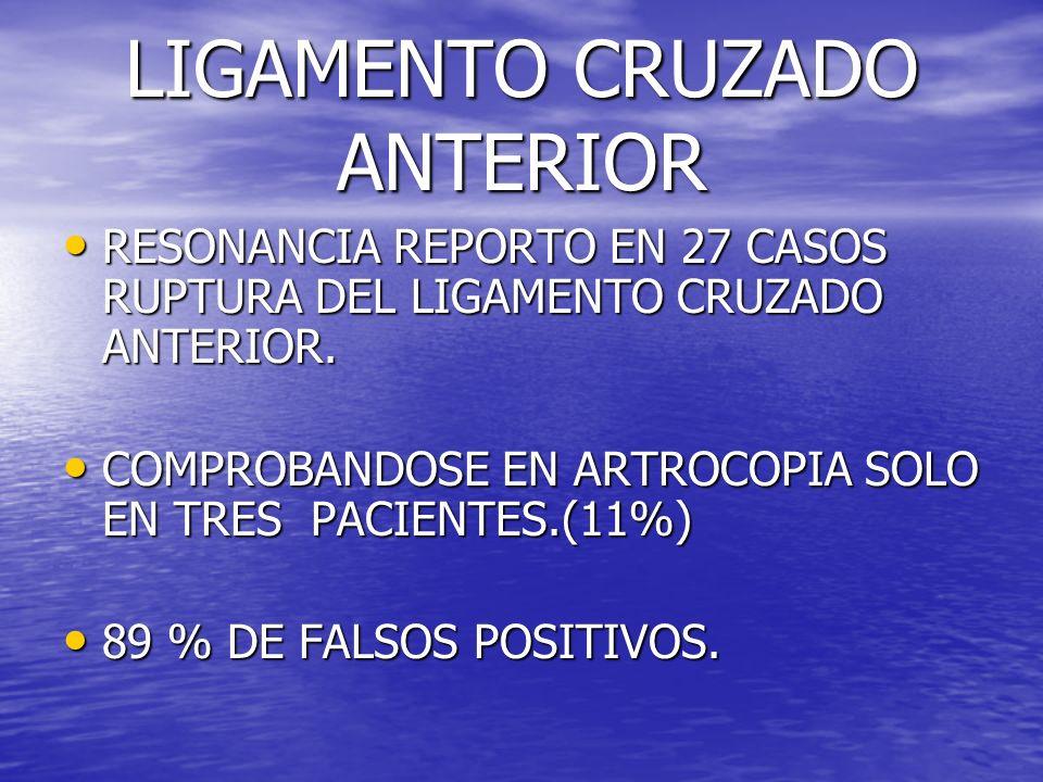 LIGAMENTO CRUZADO ANTERIOR RESONANCIA REPORTO EN 27 CASOS RUPTURA DEL LIGAMENTO CRUZADO ANTERIOR. RESONANCIA REPORTO EN 27 CASOS RUPTURA DEL LIGAMENTO