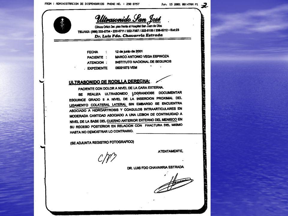 LIGAMENTO CRUZADO ANTERIOR RESONANCIA REPORTO EN 27 CASOS RUPTURA DEL LIGAMENTO CRUZADO ANTERIOR.