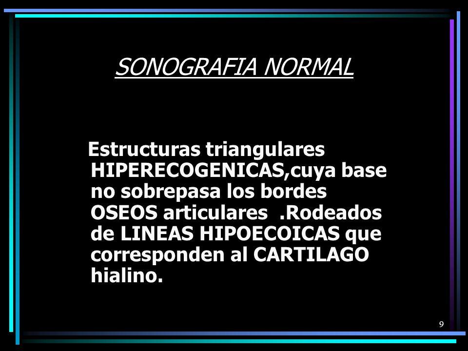 9 SONOGRAFIA NORMAL Estructuras triangulares HIPERECOGENICAS,cuya base no sobrepasa los bordes OSEOS articulares.Rodeados de LINEAS HIPOECOICAS que corresponden al CARTILAGO hialino.