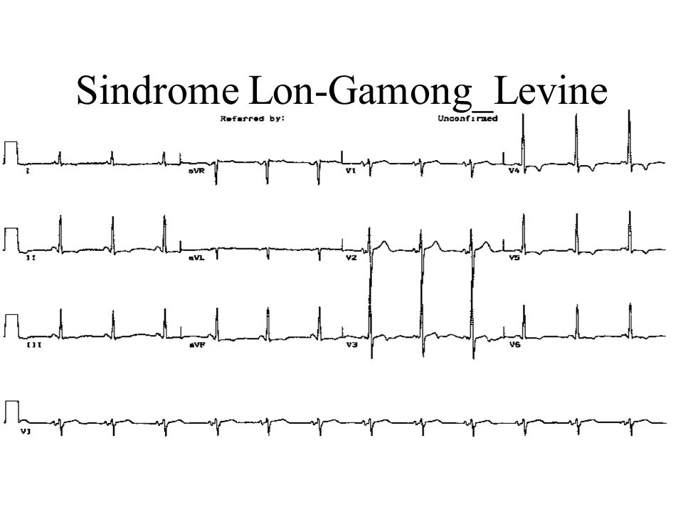 Sindrome Lon-Gamong_Levine