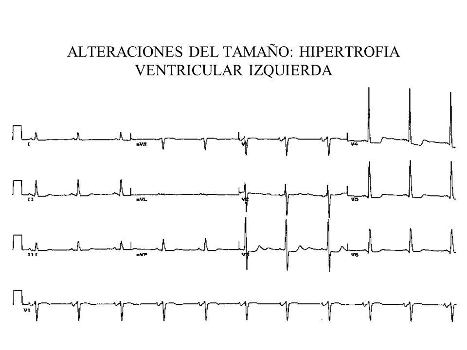 ALTERACIONES DEL TAMAÑO: HIPERTROFIA VENTRICULAR IZQUIERDA