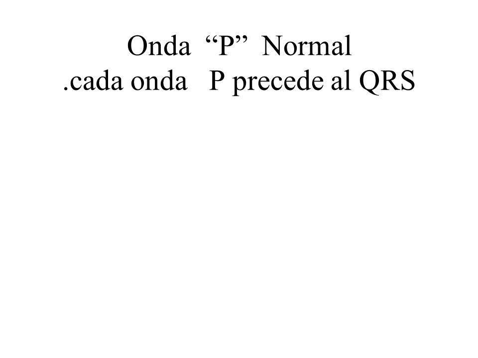 Onda P Normal.cada onda P precede al QRS