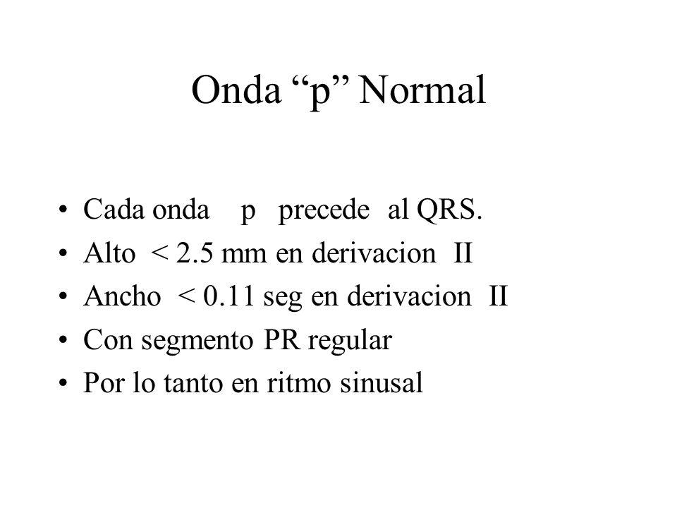 Onda p Normal Cada onda p precede al QRS. Alto < 2.5 mm en derivacion II Ancho < 0.11 seg en derivacion II Con segmento PR regular Por lo tanto en rit