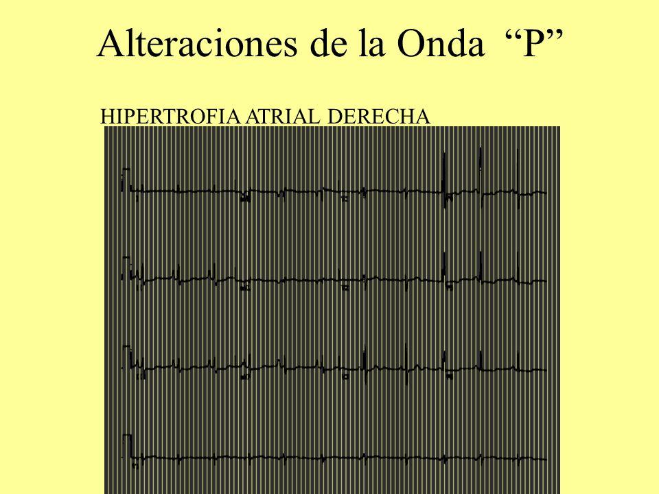 Alteraciones de la Onda P HIPERTROFIA ATRIAL DERECHA
