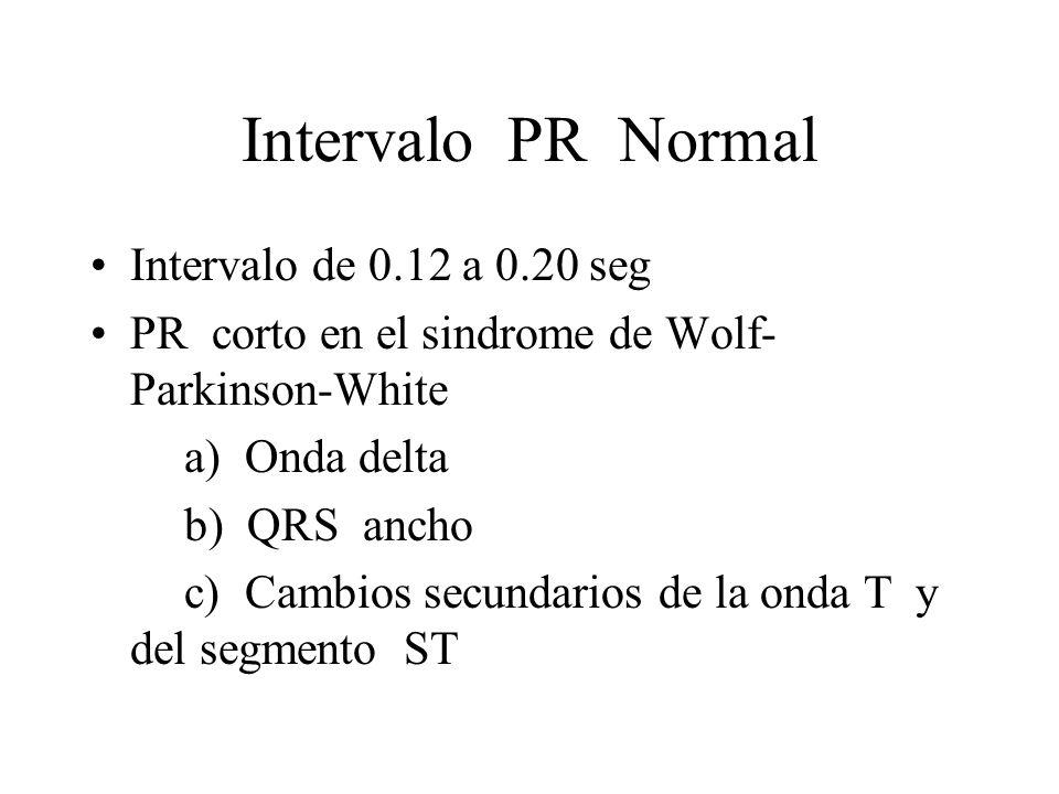 Intervalo PR Normal Intervalo de 0.12 a 0.20 seg PR corto en el sindrome de Wolf- Parkinson-White a) Onda delta b) QRS ancho c) Cambios secundarios de