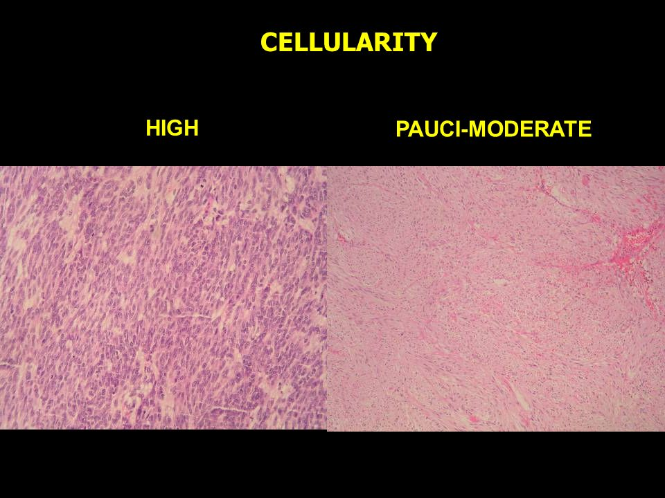 HIGH PAUCI-MODERATE CELLULARITY