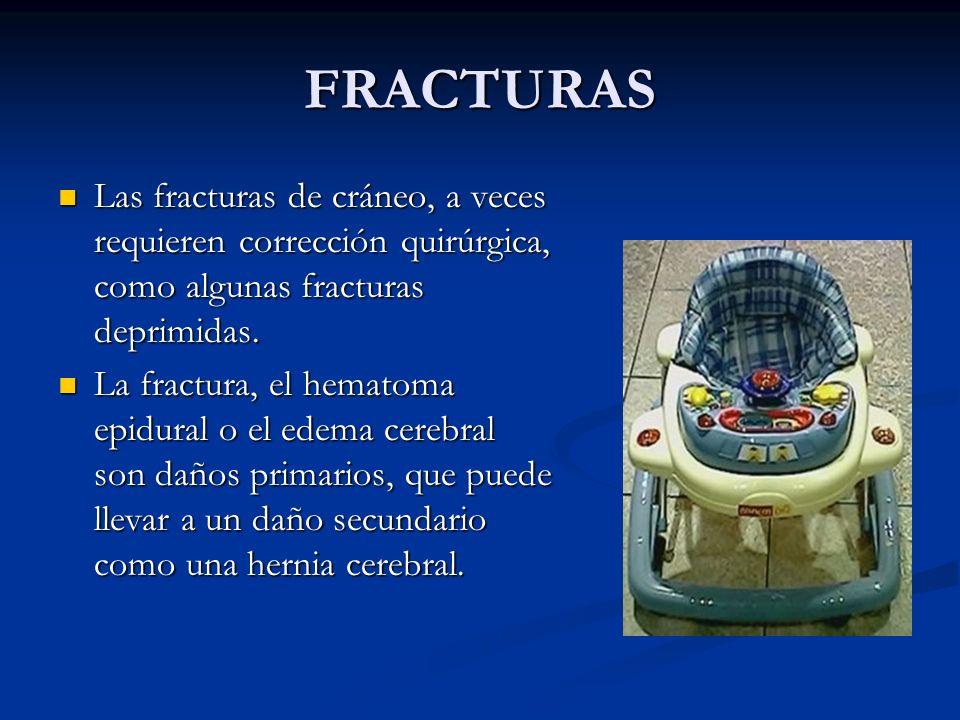 FRACTURAS Las fracturas de cráneo, a veces requieren corrección quirúrgica, como algunas fracturas deprimidas. Las fracturas de cráneo, a veces requie