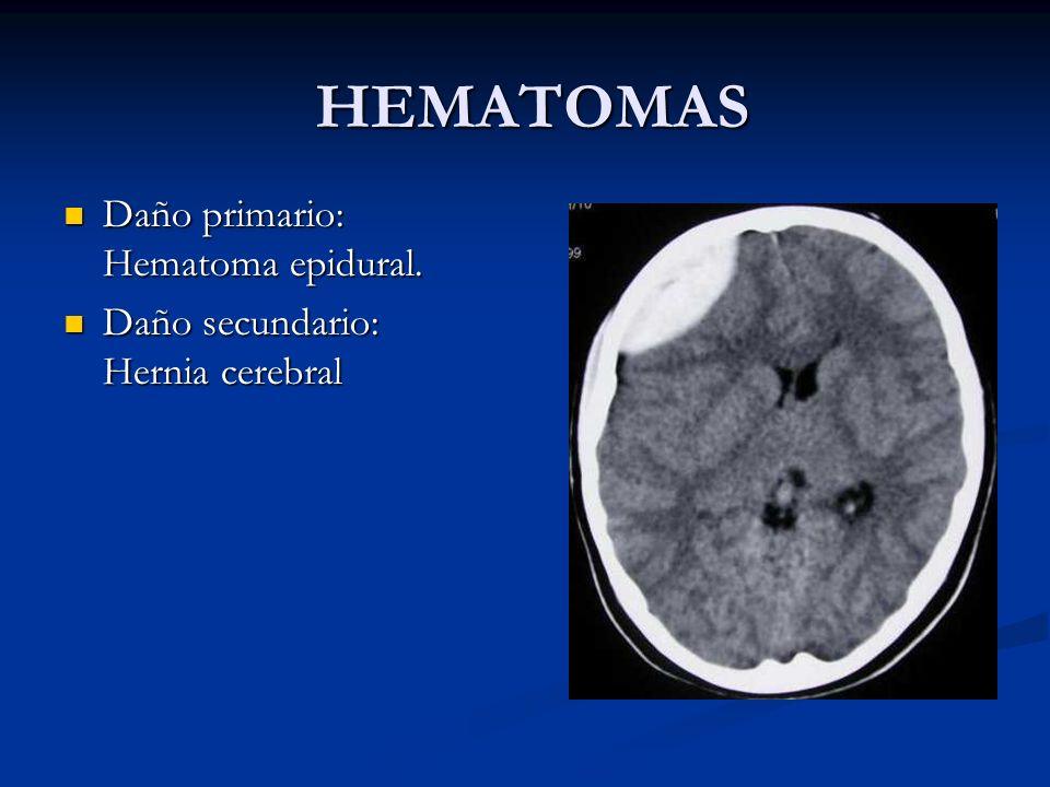 HEMATOMAS Daño primario: Hematoma epidural. Daño primario: Hematoma epidural. Daño secundario: Hernia cerebral Daño secundario: Hernia cerebral