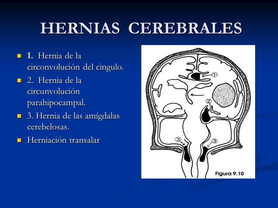 HERNIAS CEREBRALES 1.Hernia de la circonvolución del cingulo.