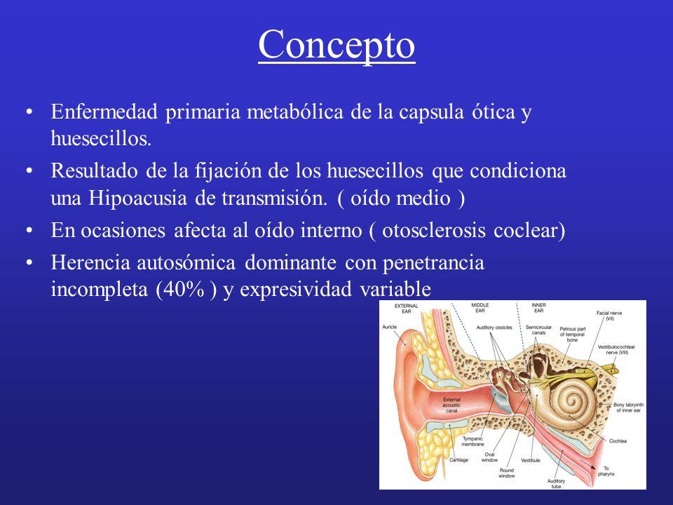 Concepto Enfermedad primaria metabólica de la capsula ótica y huesecillos. Resultado de la fijación de los huesecillos que condiciona una Hipoacusia d