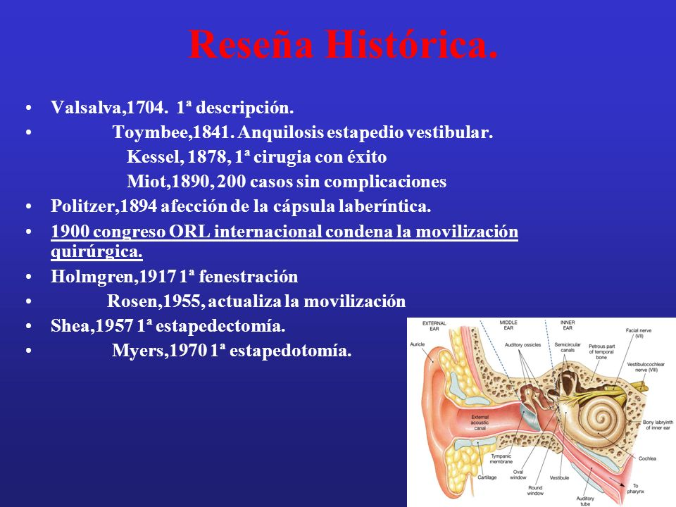 Hipoacusia heredada conductiva Otosclerosis.Osteogenesis imperfecta.