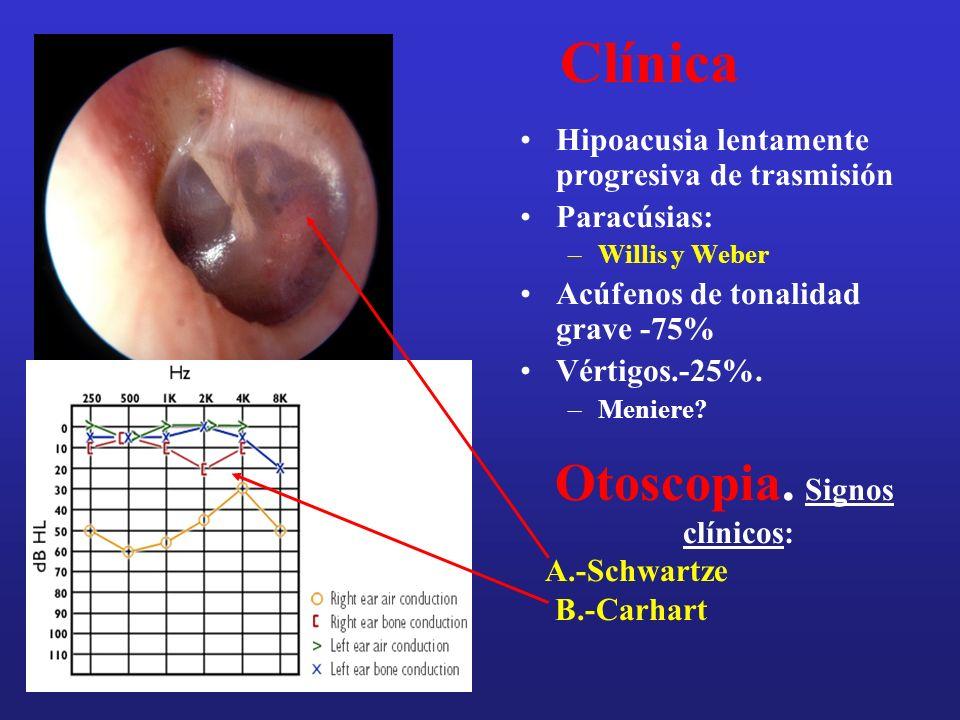 Pruebas diagnósticas Acumetría –Weber, Rinne Audiometrías –Tonal y Vocal Impedanciometrías –Timpanometría y reflejos estapedianos