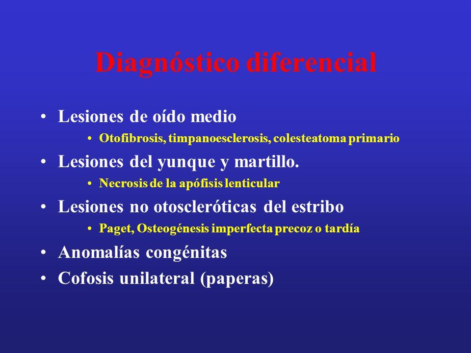 Diagnóstico diferencial Lesiones de oído medio Otofibrosis, timpanoesclerosis, colesteatoma primario Lesiones del yunque y martillo. Necrosis de la ap