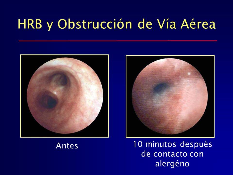 HRB y Obstrucción de Vía Aérea Antes 10 minutos después de contacto con alergéno