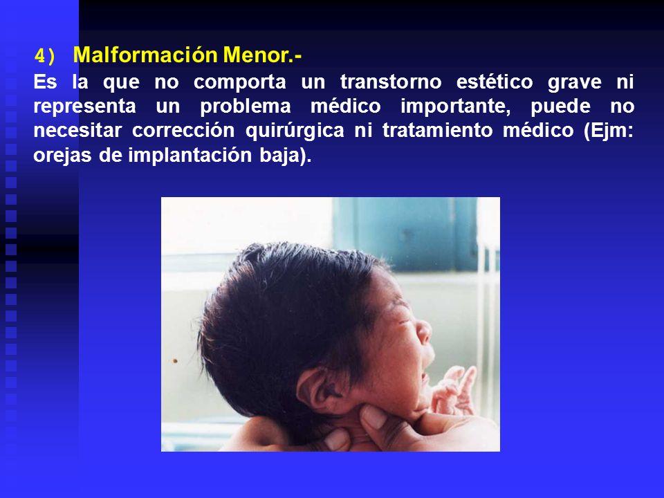 4) Malformación Menor.- Es la que no comporta un transtorno estético grave ni representa un problema médico importante, puede no necesitar corrección