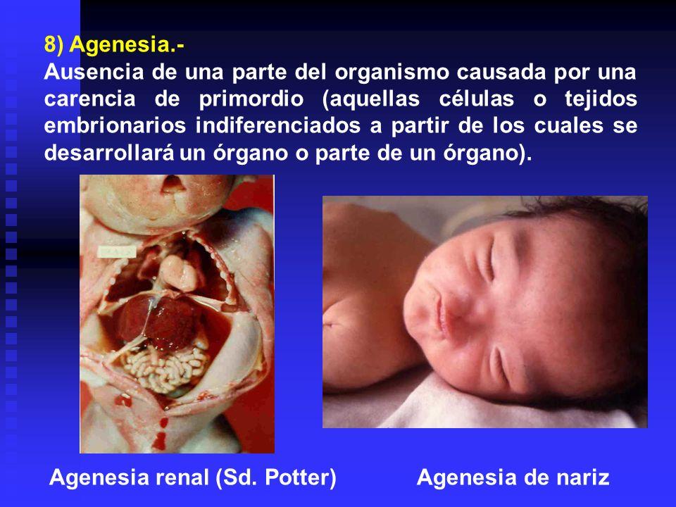 8) Agenesia.- Ausencia de una parte del organismo causada por una carencia de primordio (aquellas células o tejidos embrionarios indiferenciados a par