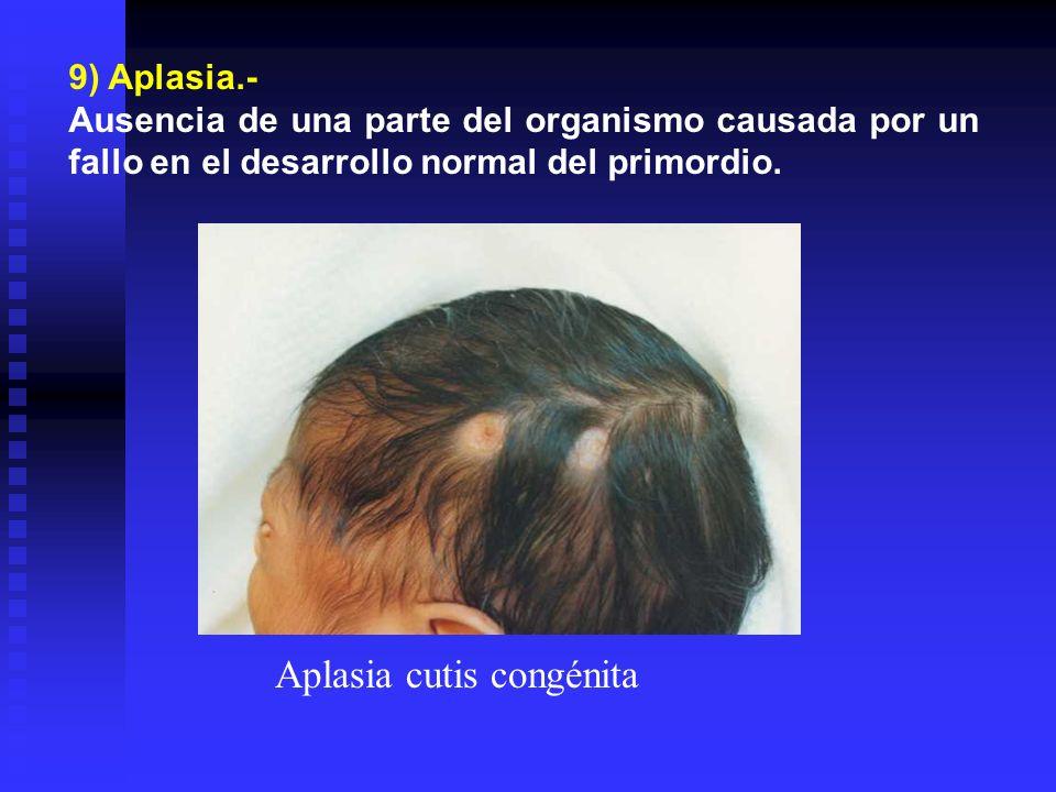 9) Aplasia.- Ausencia de una parte del organismo causada por un fallo en el desarrollo normal del primordio. Aplasia cutis congénita