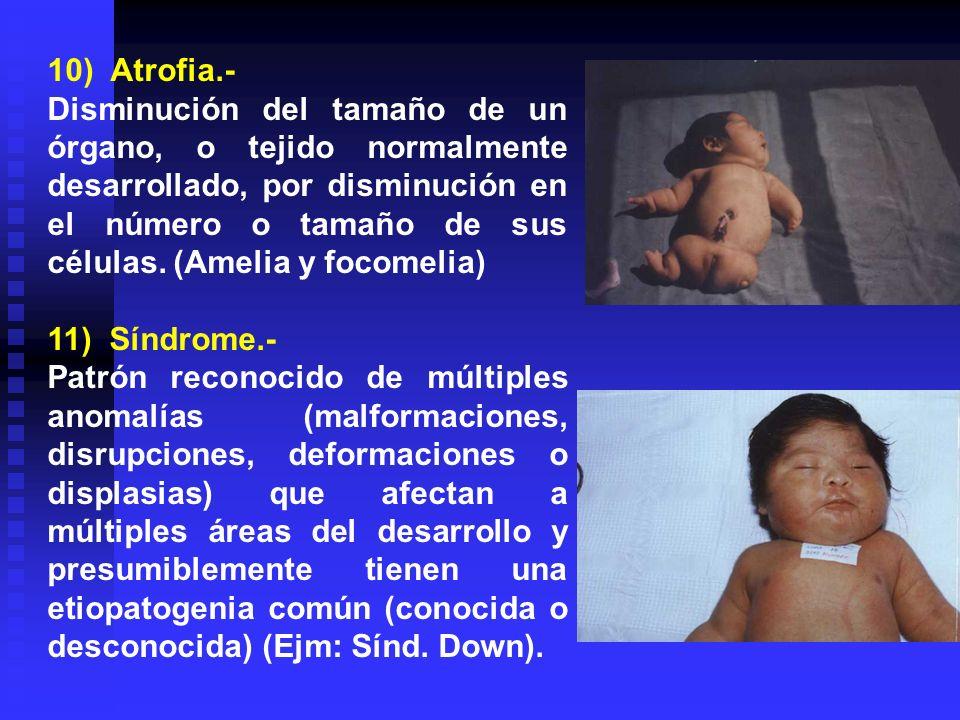 10) Atrofia.- Disminución del tamaño de un órgano, o tejido normalmente desarrollado, por disminución en el número o tamaño de sus células. (Amelia y