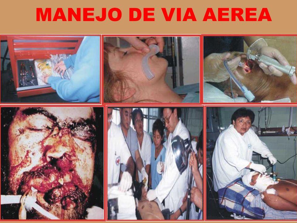 MANEJO DE VIA AEREA