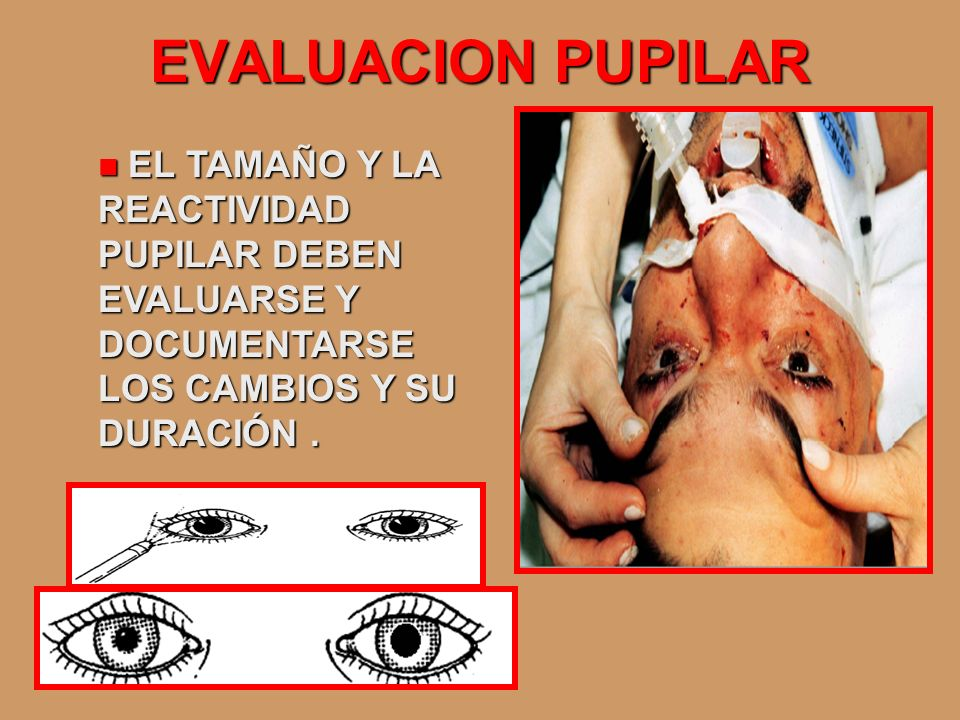 EVALUACION PUPILAR EL TAMAÑO Y LA REACTIVIDAD PUPILAR DEBEN EVALUARSE Y DOCUMENTARSE LOS CAMBIOS Y SU DURACIÓN. EL TAMAÑO Y LA REACTIVIDAD PUPILAR DEB