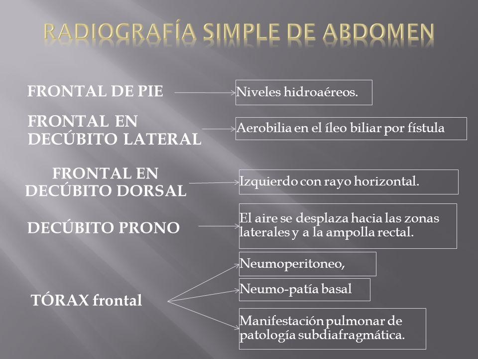 TÓRAX frontal Neumoperitoneo, Izquierdo con rayo horizontal. FRONTAL DE PIE Neumo-patía basal Manifestación pulmonar de patología subdiafragmática. El