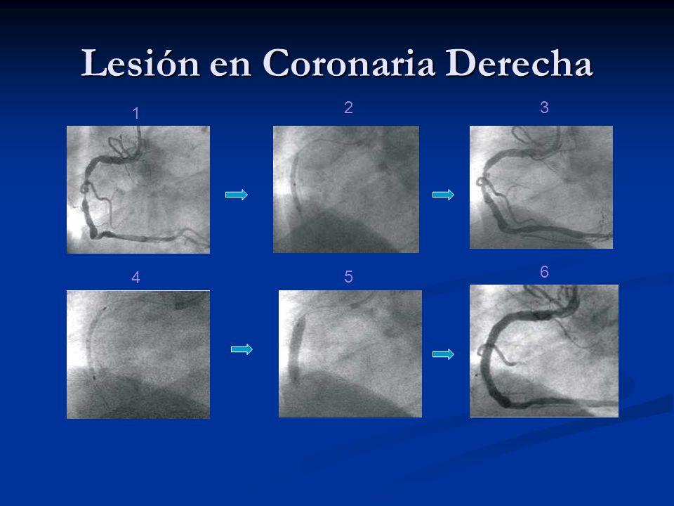 Lesión en Coronaria Derecha 1 32 4 5 6