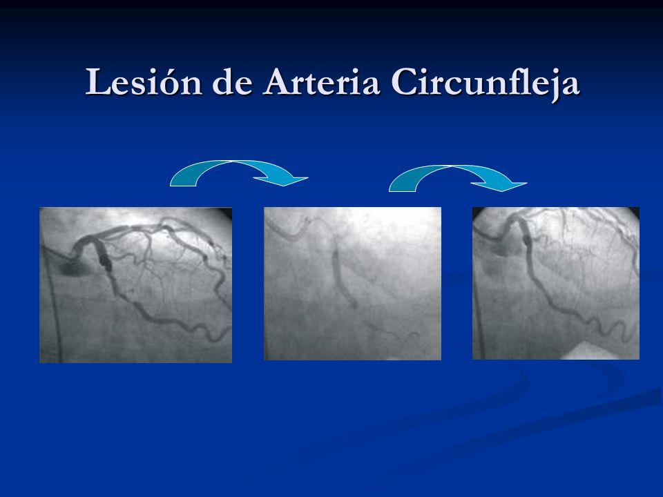 Lesión de Arteria Circunfleja