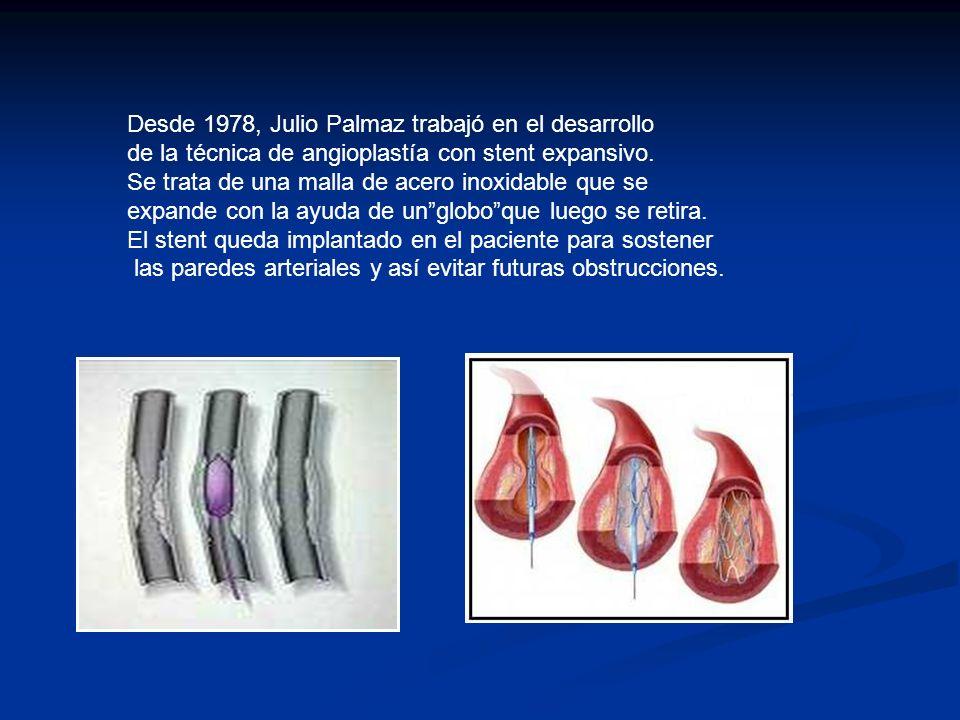 Desde 1978, Julio Palmaz trabajó en el desarrollo de la técnica de angioplastía con stent expansivo. Se trata de una malla de acero inoxidable que se