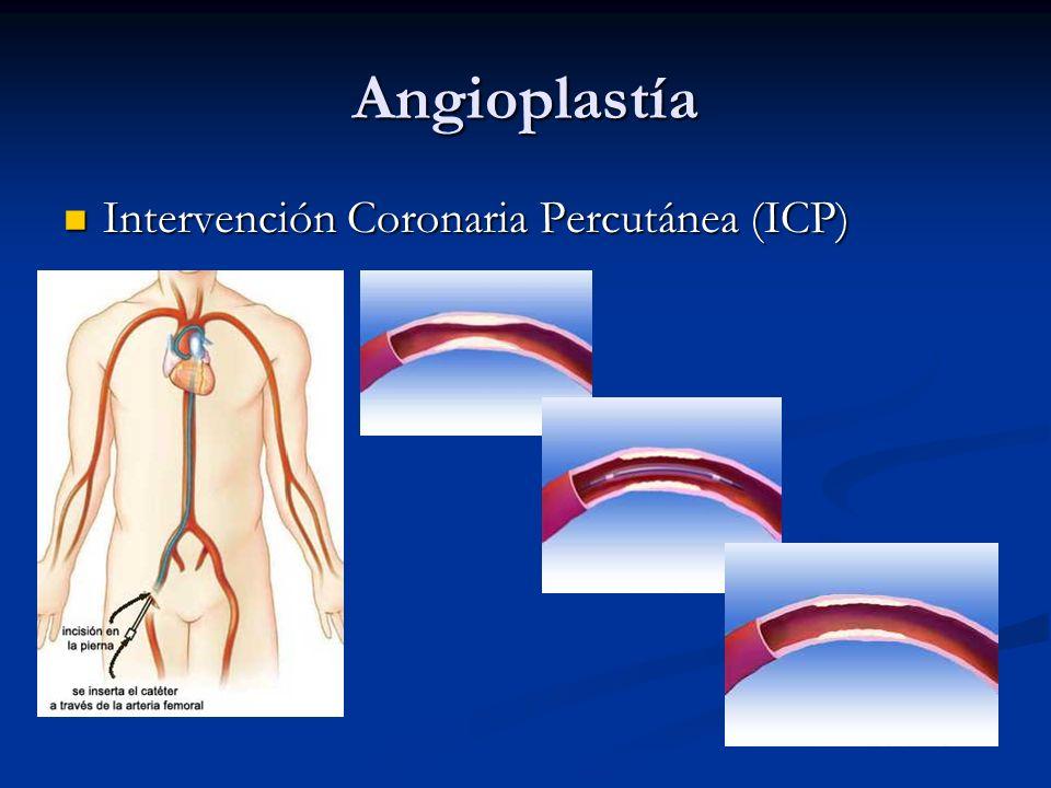 Clasificación Angioplastía primaria: intervencionismo coronario percutáneo realizado sobre la arteria relacionada con el infarto (ARI) en la fase aguda de éste (primeras 12 h) sin administración previa de trombolítico.