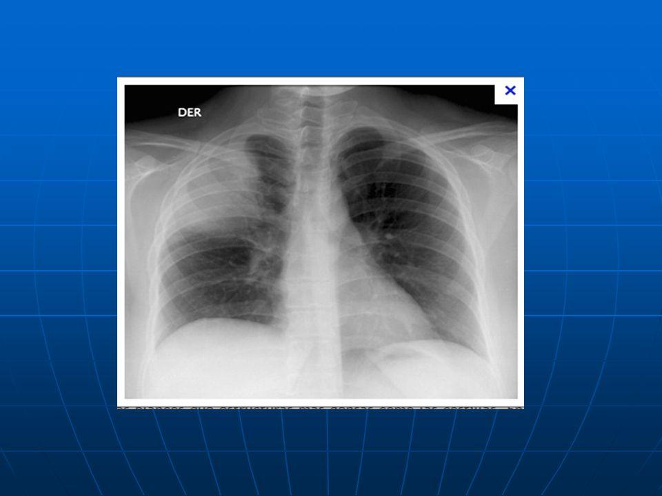 No todo lo que parece es infeccioso. Neumonía eosínofilica crónica.