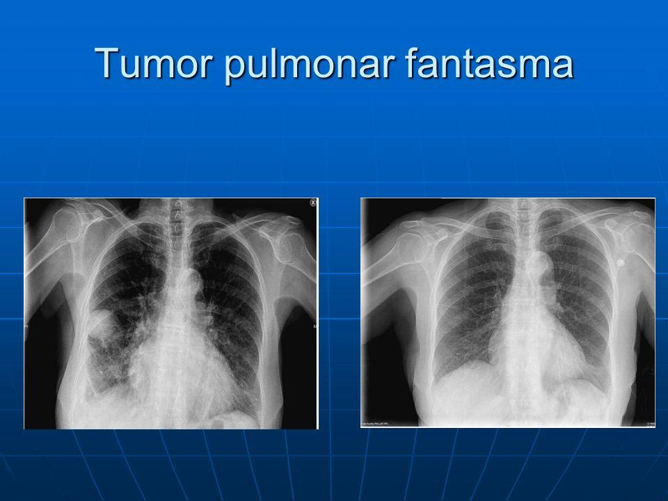 Conclusiones El diagnostico de neumonía se realiza con Rx tórax en el contexto de un cuadro clínico compatible.