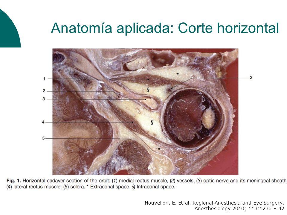 Doble punción Inferotemporal sin atravesar el septum muscular Superonasal : 2mm por dentro y debajo de escotadura supraorbitaria Descripción BPB