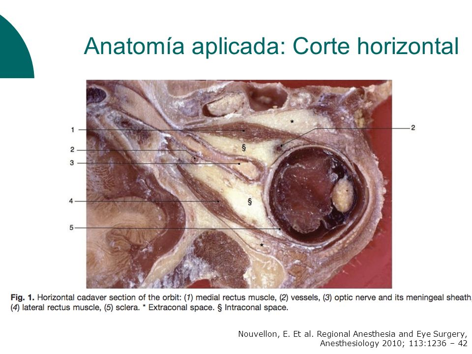 Posición ojo: Atkinson Longitud de la aguja 1 ½ pulgada: 11% chance RECOMENDACIÓN Ojos en posición neutra Aguja 1 ¼ pulgada Factores asociados