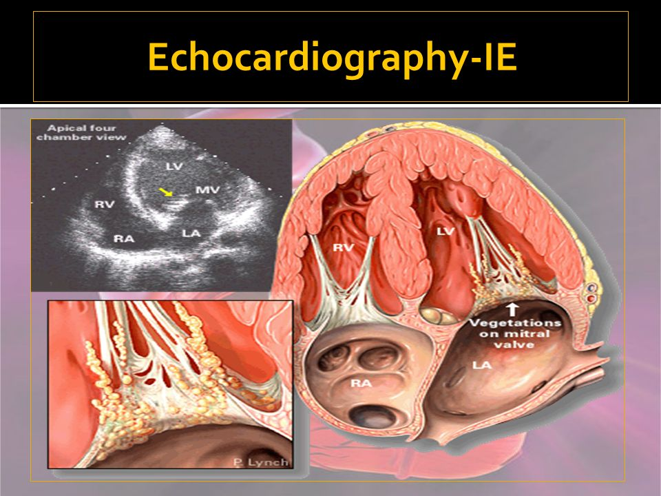 Echocardiography-IE
