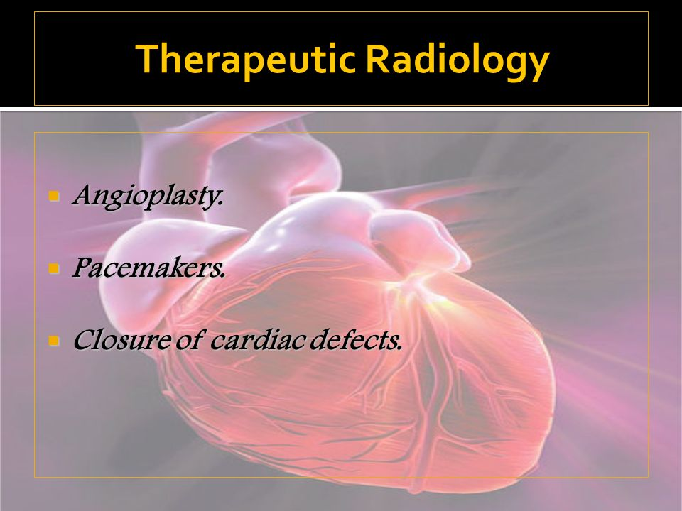 Angioplasty. Angioplasty. Pacemakers. Pacemakers. Closure of cardiac defects. Closure of cardiac defects. Therapeutic Radiology