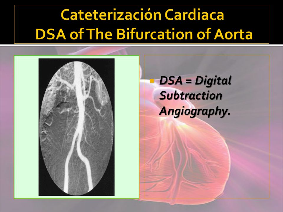 DSA = Digital Subtraction Angiography. DSA = Digital Subtraction Angiography.