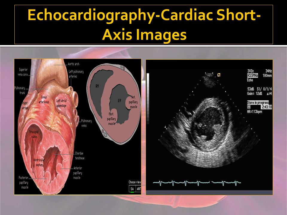 Echocardiography-Cardiac Short- Axis Images