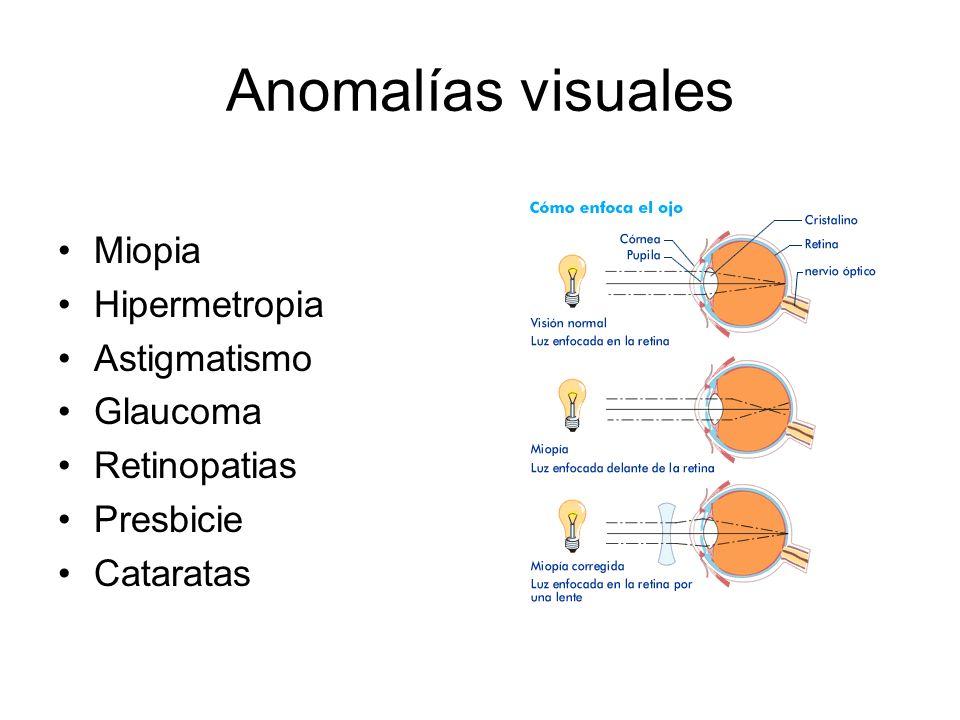 Anomalías visuales Miopia Hipermetropia Astigmatismo Glaucoma Retinopatias Presbicie Cataratas