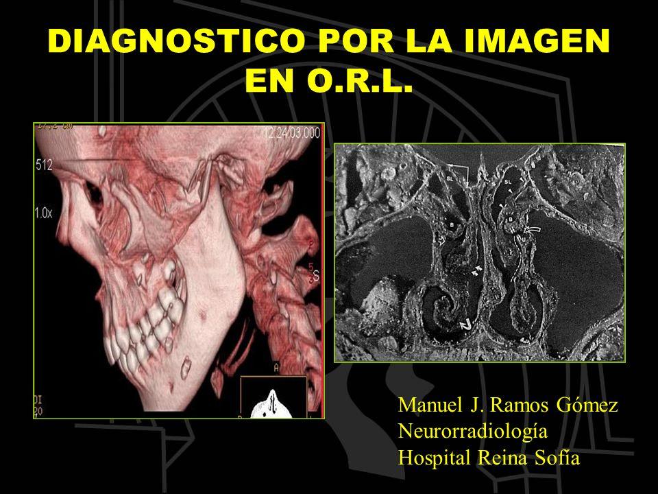 DIAGNOSTICO POR LA IMAGEN EN O.R.L. Manuel J. Ramos Gómez Neurorradiología Hospital Reina Sofía