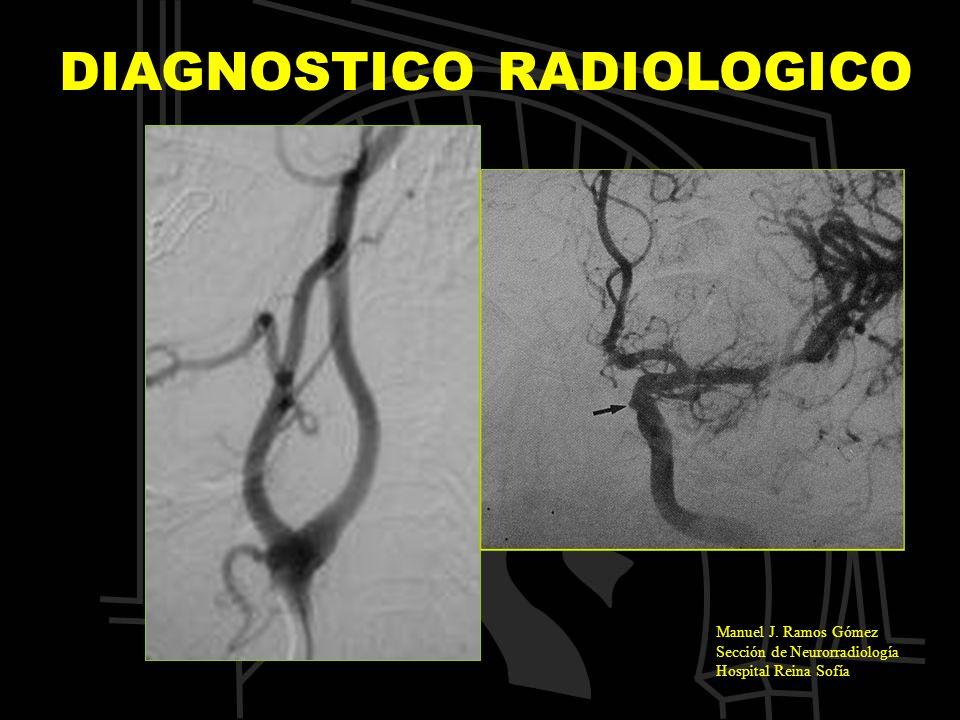 Manuel J. Ramos Gómez Sección de Neurorradiología Hospital Reina Sofía DIAGNOSTICO RADIOLOGICO