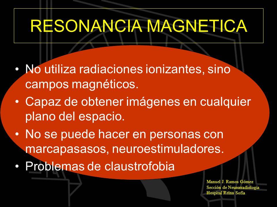 Manuel J. Ramos Gómez Sección de Neurorradiología Hospital Reina Sofía RESONANCIA MAGNETICA No utiliza radiaciones ionizantes, sino campos magnéticos.