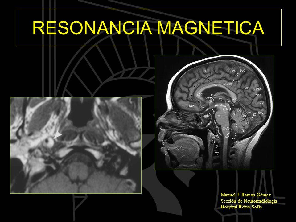 Manuel J. Ramos Gómez Sección de Neurorradiología Hospital Reina Sofía RESONANCIA MAGNETICA