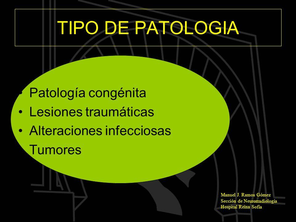 Manuel J. Ramos Gómez Sección de Neurorradiología Hospital Reina Sofía TIPO DE PATOLOGIA Patología congénita Lesiones traumáticas Alteraciones infecci