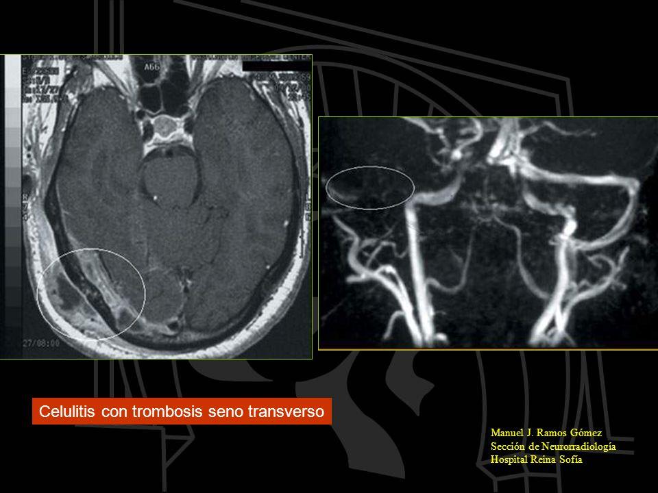 Manuel J. Ramos Gómez Sección de Neurorradiología Hospital Reina Sofía Celulitis con trombosis seno transverso