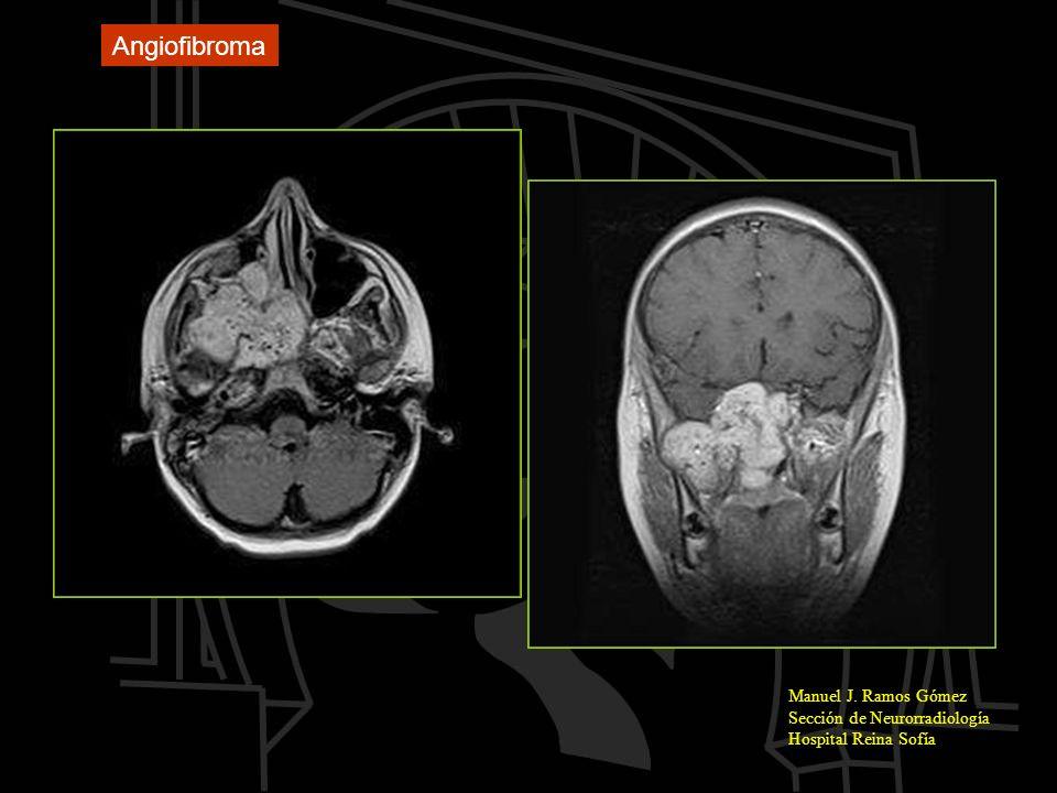Manuel J. Ramos Gómez Sección de Neurorradiología Hospital Reina Sofía Angiofibroma