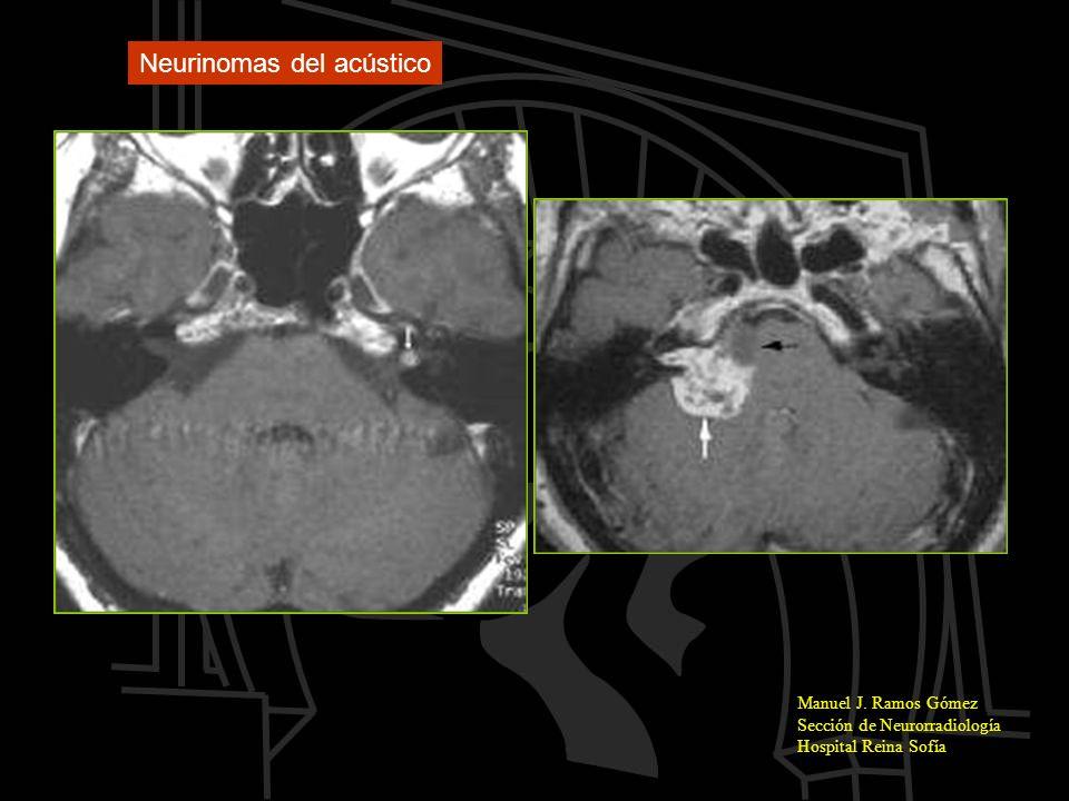 Manuel J. Ramos Gómez Sección de Neurorradiología Hospital Reina Sofía Neurinomas del acústico