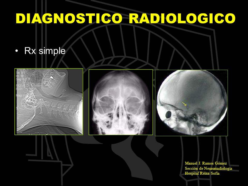 Manuel J. Ramos Gómez Sección de Neurorradiología Hospital Reina Sofía DIAGNOSTICO RADIOLOGICO Rx simple