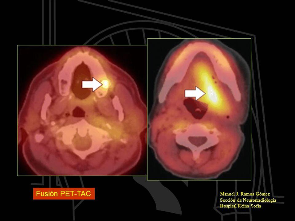 Fusión PET-TAC Manuel J. Ramos Gómez Sección de Neurorradiología Hospital Reina Sofía